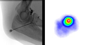 Radiosynoviorthese (RSO) bei einem Ellbogengelenk