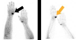 Aktivierte Arthrose sichtbar gemacht mit einer 2-Phasen Skelettszintigraphie
