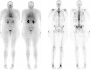 2-Phasen-Skelett-Szintigraphie